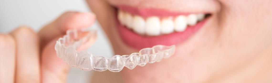 ¿Qué puedo comer si llevo Ortodoncia Invisible?