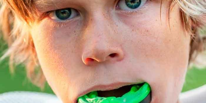 ¿Para qué sirven las férulas odontológicas para deportistas?