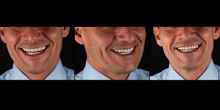 Carillas Dentales la solución Estética más rápida