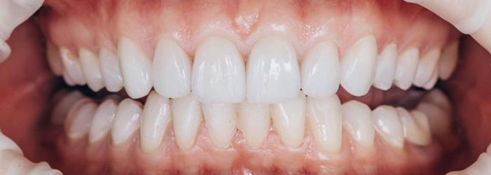 5 Consejos para cuidar tus carillas dentales