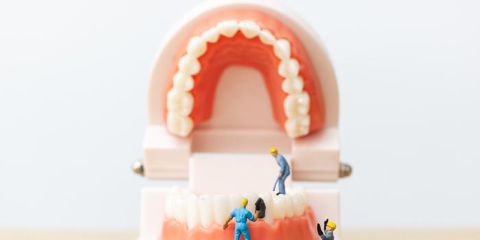 Seis Síntomas que nos alertan de la existencia de Caries Dentales