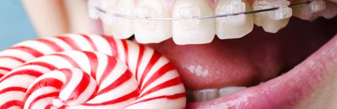 ¿Cómo Solucionar el Apiñamiento Dental?