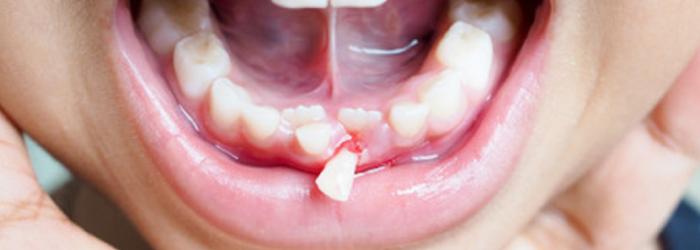 ¿Qué hacer ante un traumatismo dental en tus hijos?