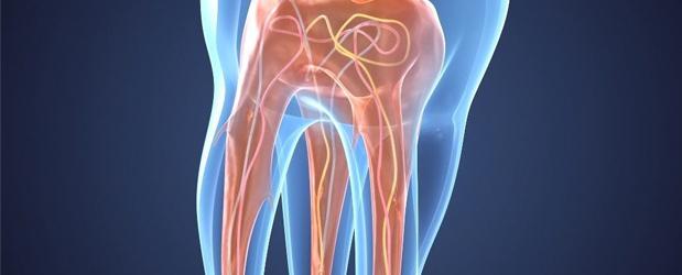 ¿ Qué es una endodoncia?