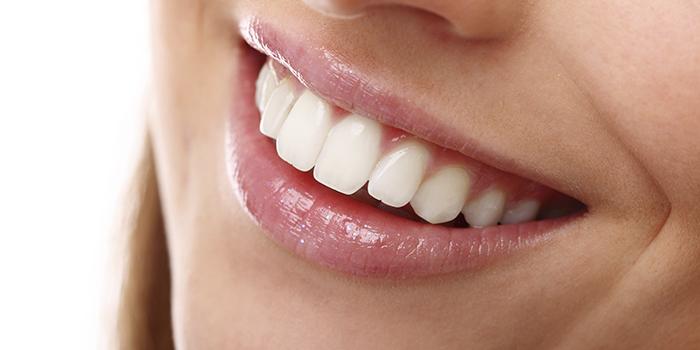 Como alinear tus dientes
